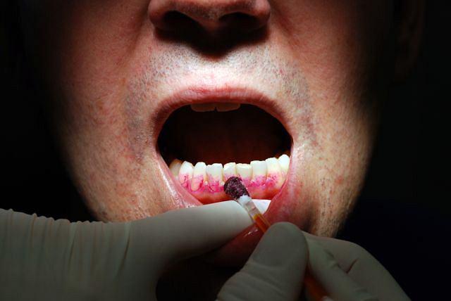 Periodontolog to specjalista, który najlepiej zaopiekuje się twoimi dziąsłami