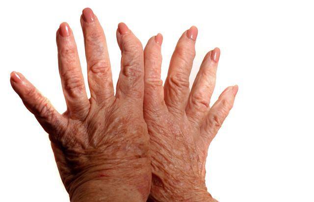 Reumatoidalne zapalenie stawów