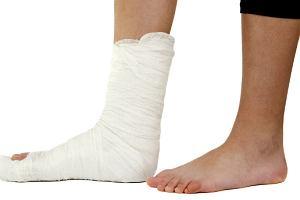 Co robi�, je�li boli nas r�ka lub noga, kt�r� z�amali�my wiele lat temu?