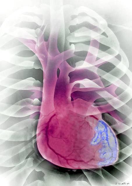Sercowe kłopoty, czyli jak chronić układ krążenia