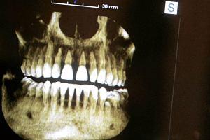 13-latek zmar� po wyrwaniu z�ba. Winna dentystka?