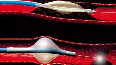 A. Ilustracja przedstawia zabieg plastyki naczyniowej przeprowadzany za pomocą sondy z końcówką wyposażoną w nadmuchiwany balonik, który rozszerzając się wewnątrz niedrożnego naczynia, likwiduje blaszkę miażdżycową. B. Ilustracja przedstawia nowszą technikę, polegającą na zastosowaniu lasera umożliwiającego swobodny przepływ krwi.