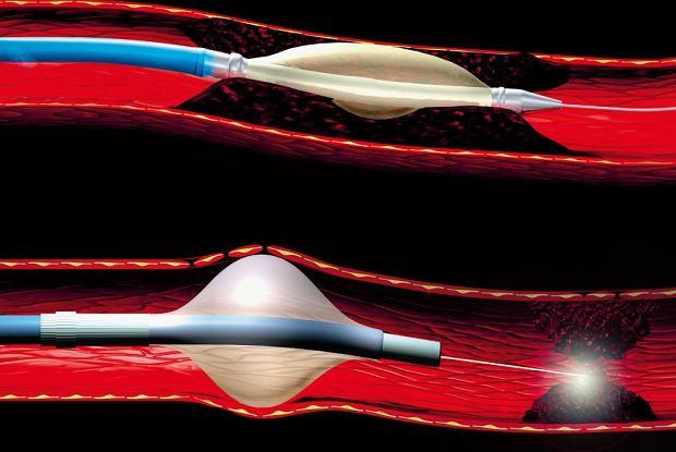 Angioplastyka