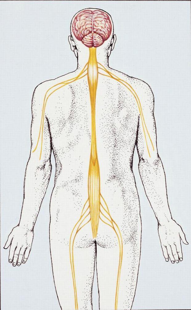 Choroba Heinego-Medina. Wirusy polio uszkadzaj� o�rodki ruchu w rdzeniu przed�u�onym. Ilustracja przedstawia rejony opuchlizny typowej dla tej choroby