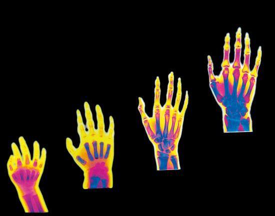 Rozwój kości. Radiogramy pokazują rozwój kości (kolor niebieski) dłoni w różnym wieku: 12 miesięcy (1), trzech lat (2), trzynastu lat (3) i dwudziestu lat (4). W dłoni dziecka (1) kości są złożone w większej mierze z chrząstek (kolor czerwony), ponieważ rozwój i pełne kostnienie, polegające na zwapnieniu chrząstek, muszą dopiero nastąpić. W pierwszym roku komponent kostny jest mniejszościowy: palce są zbudowane z chrząstek. Wapnienie palców i części stawów rozpoczyna się w wieku trzech lat (2). W wieku trzynastu lat (3) rozwój kostny jest ukończony i chrząstki zostają zwapnione: wszystkie kości dłoni są widoczne, a przestrzenie pomiędzy spoinami palców zbudowanych z chrząstki są znacznie ograniczone. W wieku dwudziestu lat (4) rozwój szkieletu można uznać za zakończony