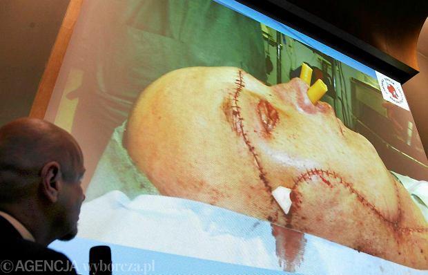 Konferencja w gliwickim Centrum Onkologii po pierwszym w Polsce przeszczepie twarzy i pierwszym na świecie przeprowadzonym dla uratowania życia choremu