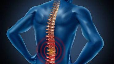 Osteofity to narośla kostne, które uciskają nerw i wywołują silny ból