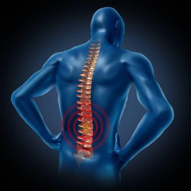 Osteofity to naro�la kostne, kt�re uciskaj� nerw i wywo�uj� silny b�l