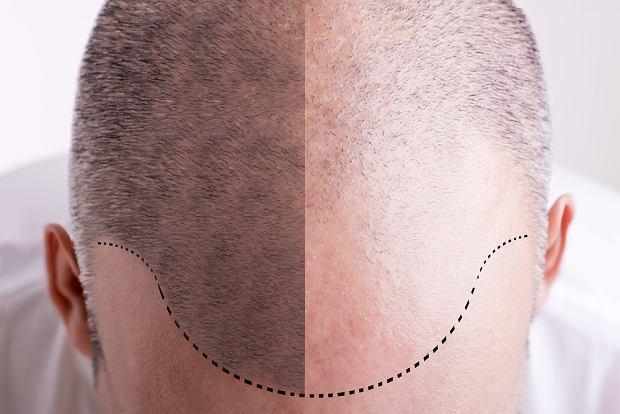 Przeszczep włosów - ile kosztuje, na czym polega, czy boli, efekty