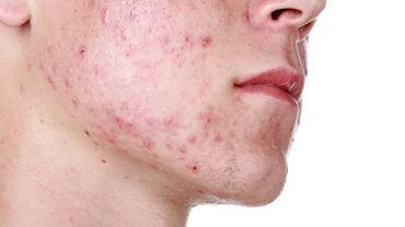 Trądzik to choroba skóry, która ma różne postacie. Naukowcy z USA odkryli, dlaczego u jednych się pojawia, a inni są na nią odporni