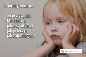 Choroby zaka�ne: po czym poznasz, z kt�r� masz do czynienia?