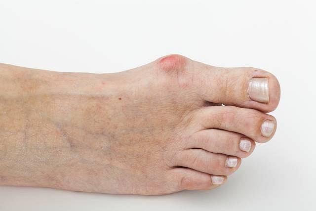 Noszenie szpilek lub źle wyprofilowanego obuwia może pociągać za sobą przykre konsekwencje
