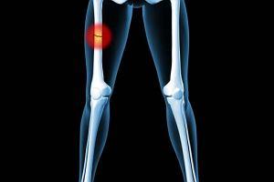 Złamanie kości udowej