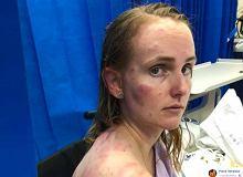 Obroniła swoje dziecko przed gradowymi kulami. Jej całe ciało pokryło się wielkimi siniakami