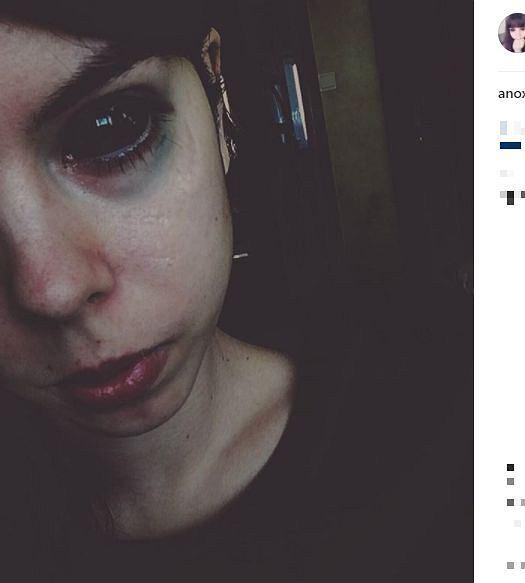 Zdjęcie numer 5 w galerii - Fanka Popka nadal traci wzrok przez tatuaż oczu. Szczegóły zdradziła w