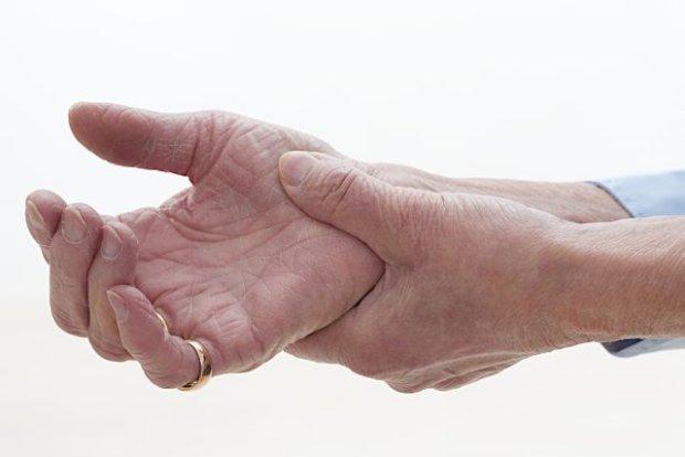 Guzki Heberdena - objawy, diagnoza, leczenie