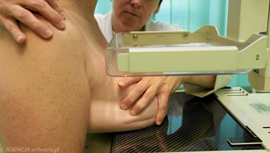 Badanie mammograficzne - zdjęcie ilustracyjne