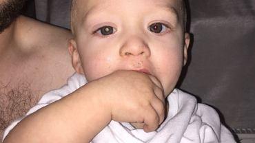 Nietypowo odbijające się w oczach Jaxsona światło spowodowało, że rodzice zaczęli się martwić o jego zdrowie
