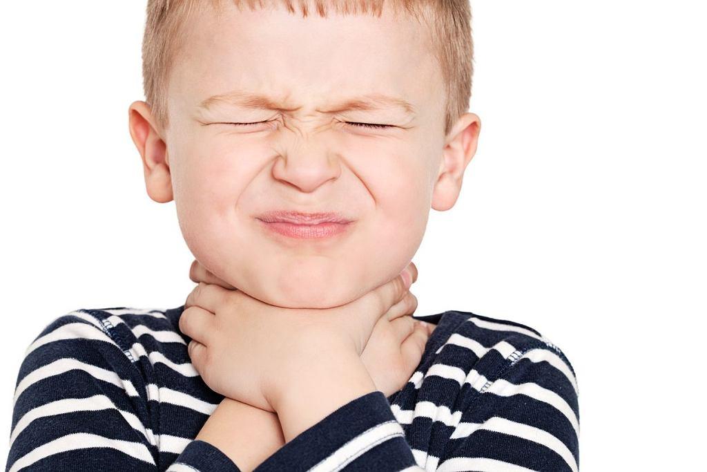 Szkarlatyna (płonica) to zakaźna choroba wieku dziecięcego. Szkarlatyna: objawy są dość charakterystyczne, nie sposób ich przegapić. (zdjęcie ilustracyjne)