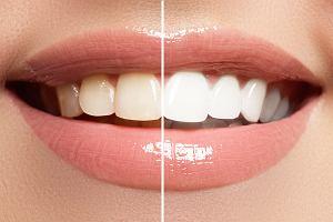 Sposób na śnieżnobiałe zęby. Sprawdź, czego powinnaś unikać