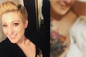 """Amputowano jej część piersi, ale nie chciała operacji plastycznej. """"Ozdobiła"""" swoje blizny inaczej [FOTO]"""