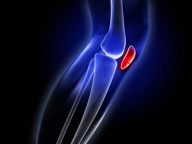 Stłuczenie kolana