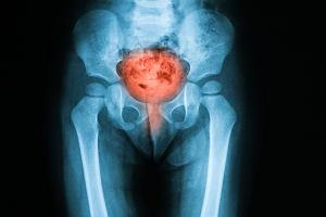Pęcherz moczowy - gdzie się znajduje, jakie pełni funkcje i jak rozpoznać, że choruje?