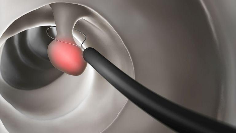 Podczas kolonoskopii możliwe jest przeprowadzenie polipektomii, czyli usunięcia polipów obecnych w jelicie grubym