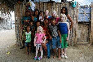 Dzieci ksi�yca, wnuki s�o�ca, czyli albinosi z Wysp Karaibskich