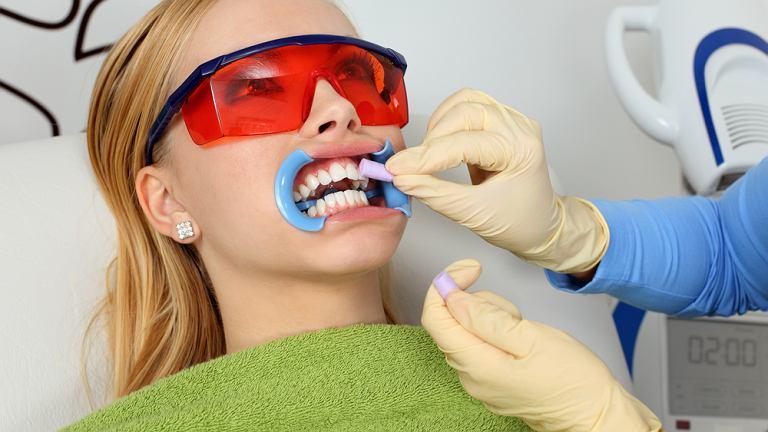 Wybielanie zębów w gabinecie dentystycznym