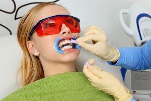 Wybielanie zębów - prawdy i mity