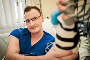 Pacjent po przeszczepieniu ręki, której nigdy nie miał: Ruszam już palcami