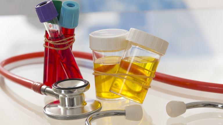Amoniak to produkt uboczny, wytworzony przez bakterie jelitowe, podczas trawienia białka w organizmie.