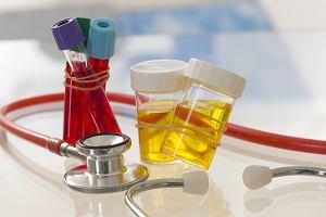 Amoniak - kiedy należy przeprowadzić badania krwi i moczu?