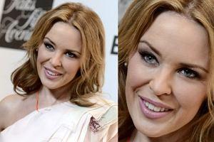 Kylie Minogue ma 45 lat i ani jednej ZMARSZCZKI! Cud natury czy cud medycyny estetycznej?