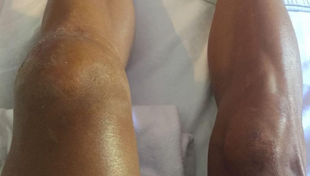 Kontuzjowane kolano Philippe`a Gilberta