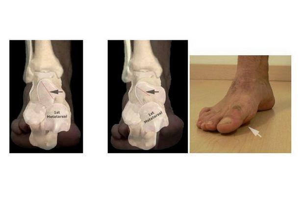Po lewej - prawidłowo rozwinięta kość skokowa w efekcie prawidłowo podparta stopa. Po prawej - nieprawidłowy proces torsji kości skokowej (czarna strzałka) w efekcie nadmierna supinacja I kości śródstopia i uniesienie palucha.