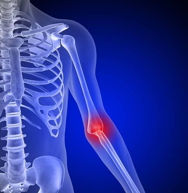 Mięsak Ewinga to złośliwy nowotwór kości. Schorzenie występuje przede wszystkim u dzieci, u dorosłych pojawia się niezwykle rzadko