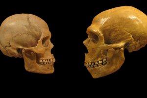 Przed wiekami ludzie prawie nie mieli problemów z zębami. Dlaczego teraz wszyscy musimy je leczyć?