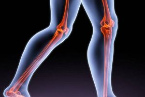 Żylna choroba zakrzepowo-zatorowa kończyn dolnych