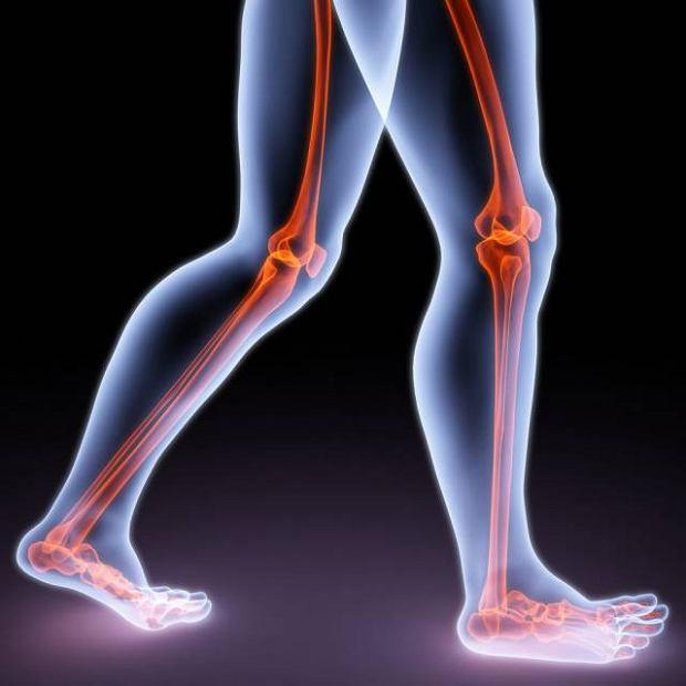 �ylna choroba zakrzepowo-zatorowa ko�czyn dolnych