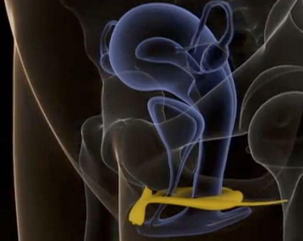 Obraz sonograficzny łechtaczki we wzwodzie, opracowany przez francuskich badaczy pod kierownictwem ginekolog dr Odile Buisson i urologa oraz seksuologa Pierra Foldesa