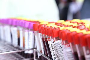 Czerwienica - przyczyny, objawy i leczenie