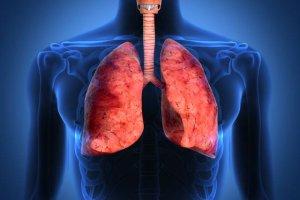 Międzybłoniak opłucnej (Śródbłoniak opłucnej)