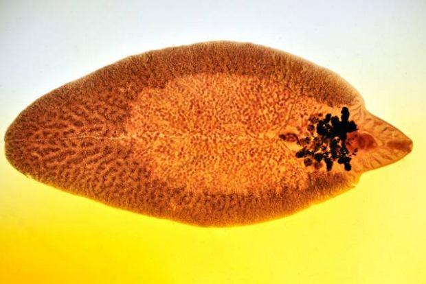 Fascjoloza (przywrzyca lub choroba motylicza)