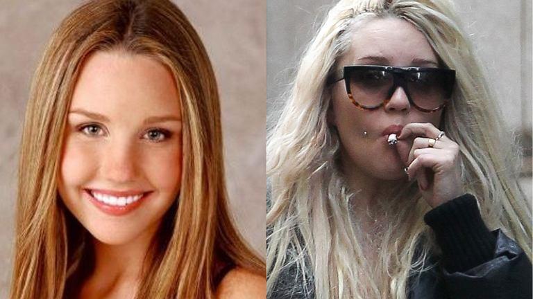 Amanda Bynes jest już kolejną gwiazdą, która nie poradziła sobie ze sławą i ogromnymi pieniędzmi, zdobytymi w młodym wieku. Jej kariera zaczęła się sypać w 2012 roku, w momencie gdy pojawiły się poważne problemy z alkoholem, narkotykami i prawem. Aktorka kilka razy została zatrzymana oraz aresztowana za prowadzenie samochodu pod wpływem alkoholu. Jak wynika jednak z jej ostatnich zdjęć, Bynes powoli wychodzi na prostą. Jest 'czysta' - nie pije alkoholu oraz nie bierze narkotyków.