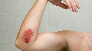 Krwawe wybroczyny na kończynach to najbardziej charakterystyczne objawy trombocytopenii