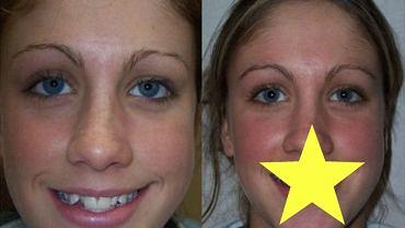 Operacja plastyczna ust przed i po.
