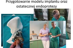 Pacjentce wszczepiono protezę wydrukowaną w technologii 3D. Pasuje jak ulał