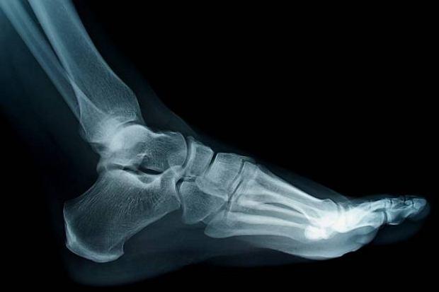 Złamanie kości śródstopia